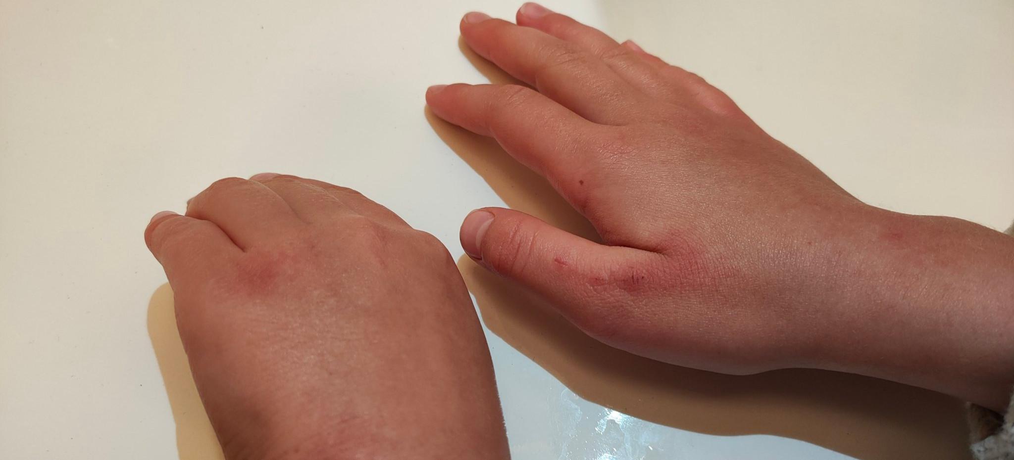 POSŁANKA PiS OSTRZEGA: Tak wyglądają ręce dziecka po tygodniu dezynfekcji w szkole (FOTO)